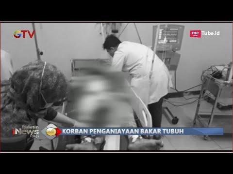 Sadis! Pria di Medan Dibakar Hidup-hidup Hingga Nyaris Tewas - BIP 24/11 Mp3
