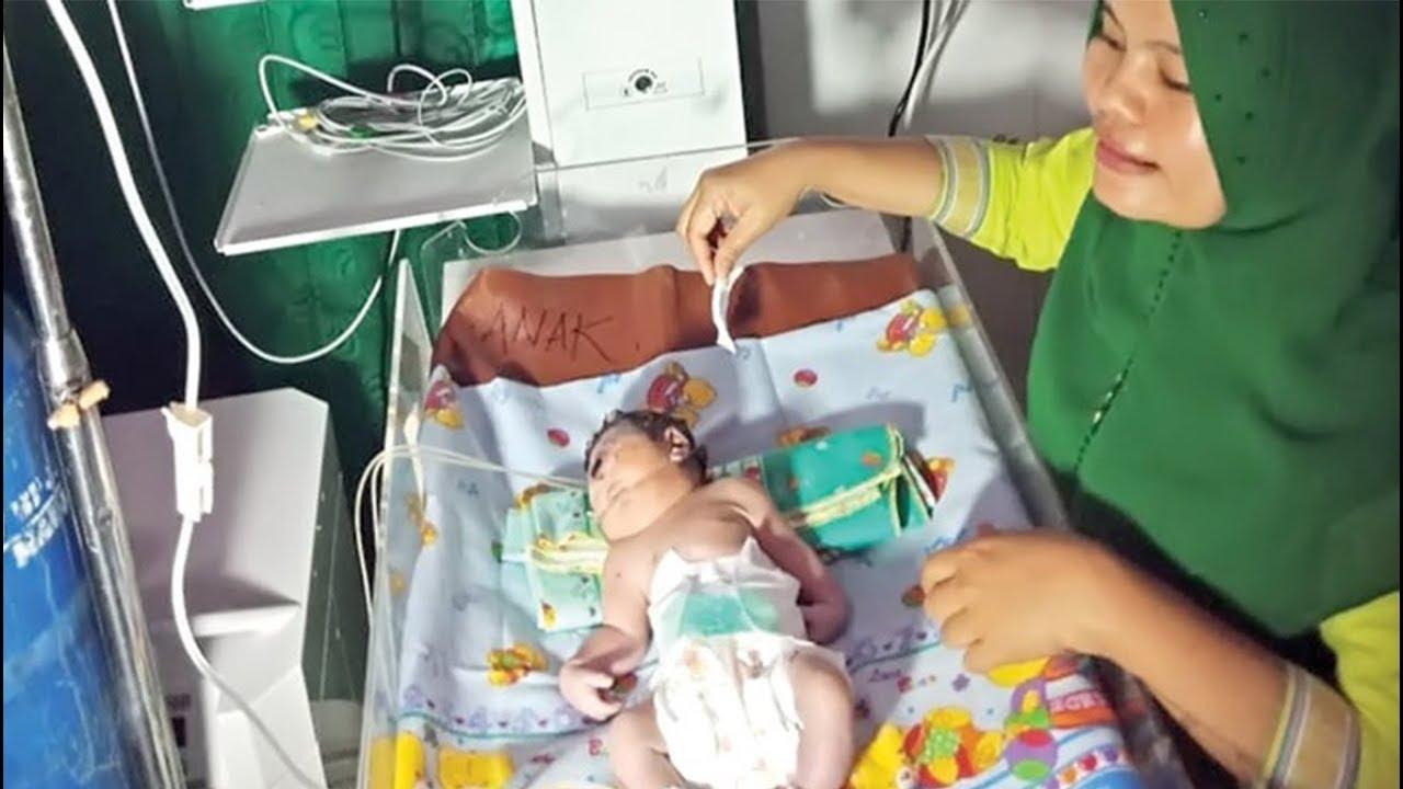 Bayi Bermata Satu Bikin Heboh