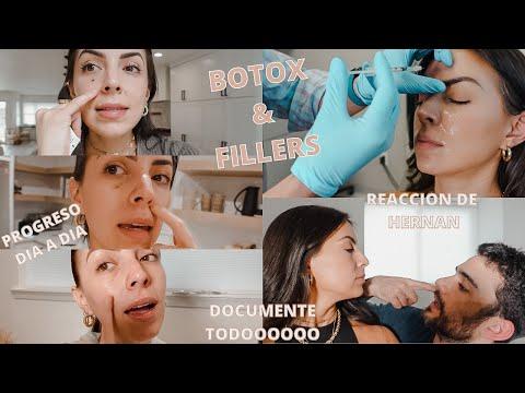 BOTOX & FILLERS | LES CUENTO TODO | LO BUENO & MALO | Carol del Toro
