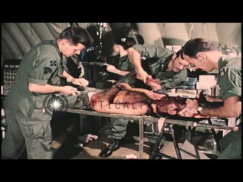 Doctors and Nurse in Vietnam treat a severely wounded United States soldier. HD Stock Footage