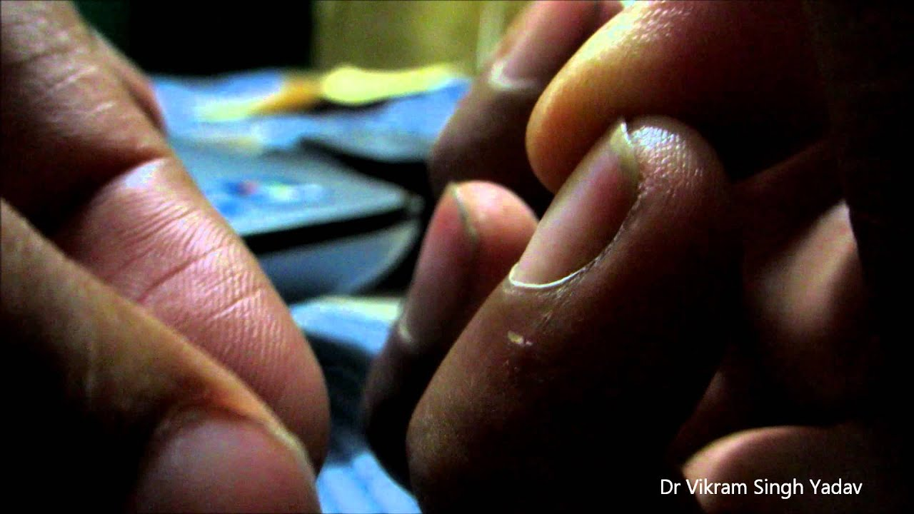 Painful Skin Split Near Nail Fold- Treatment - YouTube