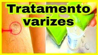 De tratamento remédio para varizes caseiro