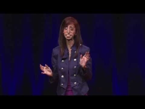 I Choose To Be Happy: Lizzie Valasquez at TEDxYouth@Austin