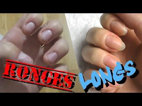 Passer d'ongles rongés, à longs (passage avant/après) - Mathy Pik