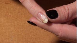 Astuce : Comment réparer un ongle cassé