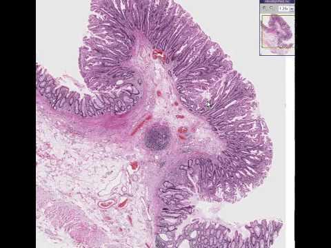 WashingtonDeceit   Histopathology Colon  Hyperplastic polyp
