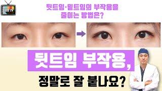 [모티브 성형외과] 뒷트임 부작용, 정말로 잘 붙나요?…