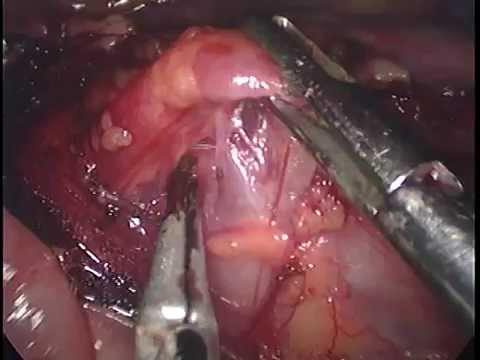 retroperitoneal lymph node biopsy