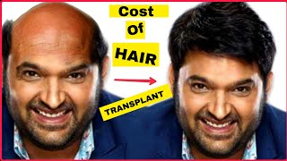 COST OF KAPIL SHARMA HAIR TRANSPLANT || HAIR WIG OR HAIR TRANSPLANT ||REALITY CHECK