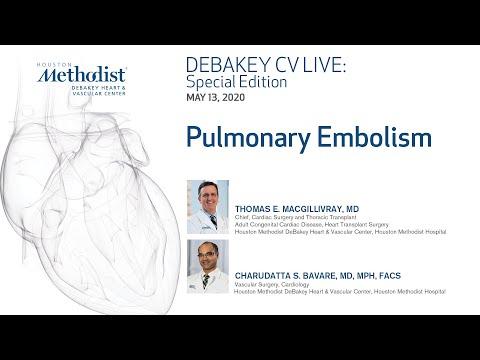 Pulmonary Embolism (Thomas E. MacGillivray, MD And Charudatta S. Bavare, MD) May 13, 2020