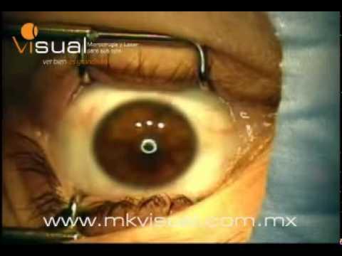 Cirugía LASIK para corrección de Miopía, Hipermetropía y Astigmatismo