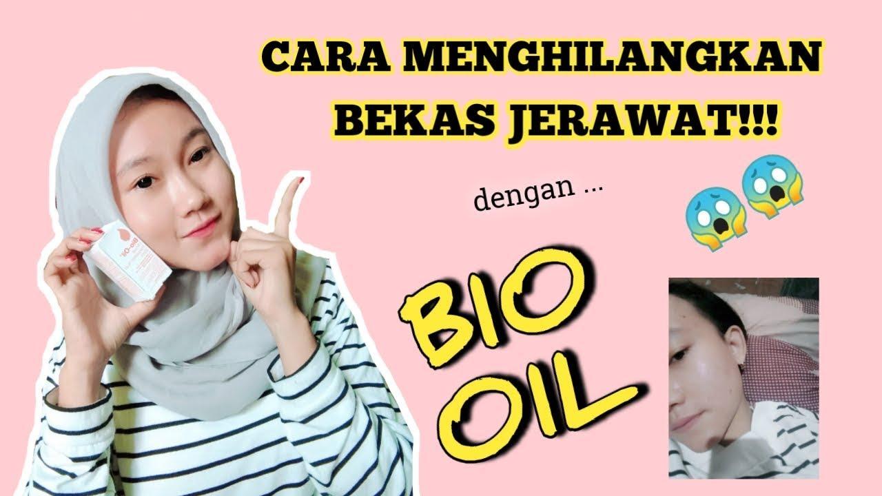CARA MENGHILANGKAN BEKAS JERAWAT DENGAN BIO OIL!! - YouTube