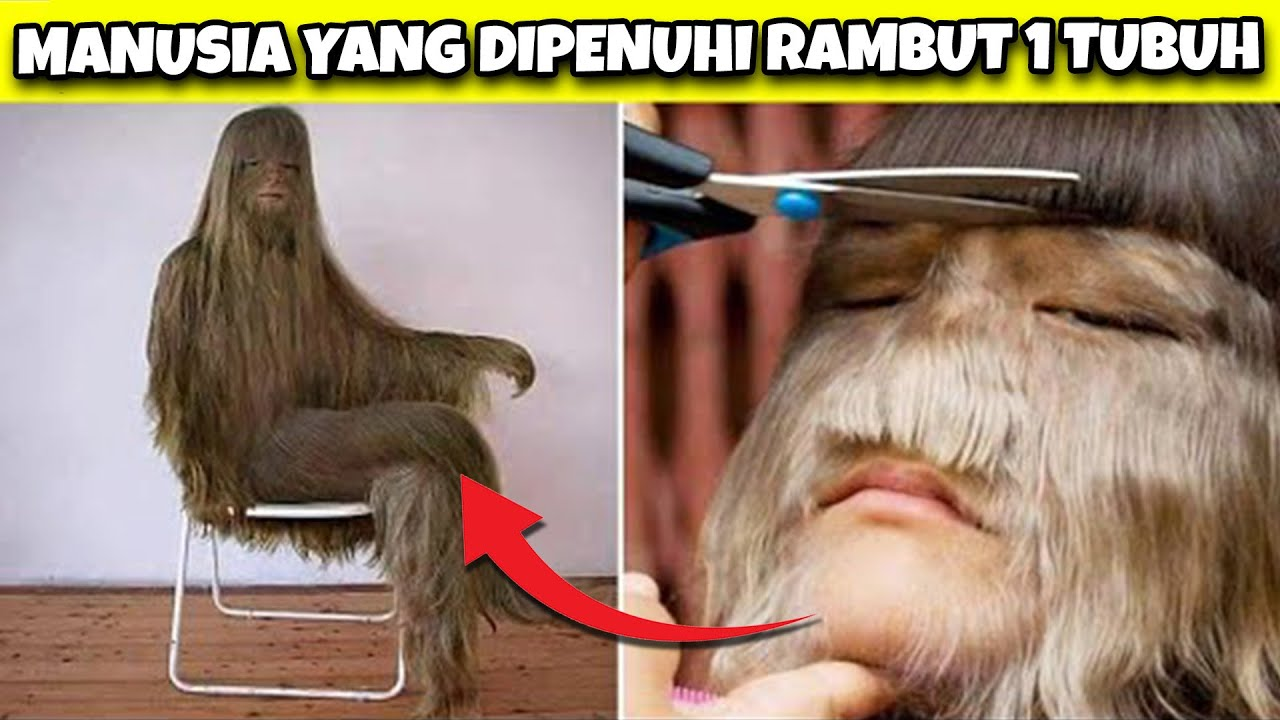 Orang Ini 1 Tubuhnya Dipenuhi Rambut Seperti Sun-Go-Kong?! Beberapa Manusia Asli Paling Aneh & Unik!