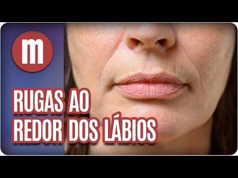 Rugas ao redor dos lábios - Mulheres (24/05/17)