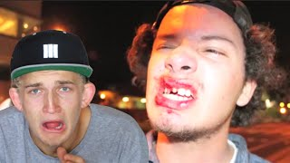 One of Garrett Ginner's most viewed videos: TRY NOT TO CRINGE!! WORST SKATEBOARDING ACCIDENTS! *Blood alert!*