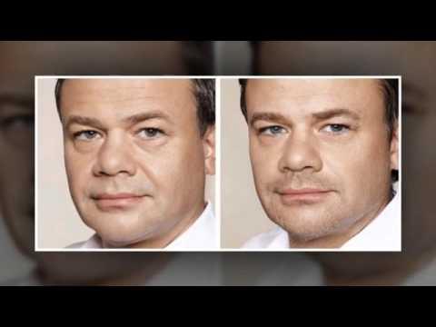 Connecticut facial fillers