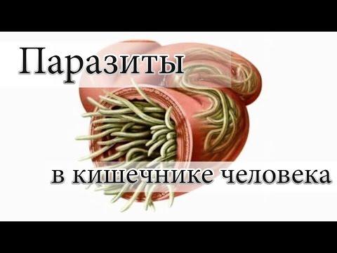 Кишечные паразиты у человека