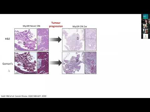 Dissecting the Myc-dependent pancreatic tumour regression programme