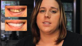 Real Press On Veneer Client Review | Client reviews removable veneers for the first time