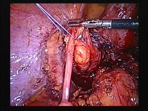 Adnexectomy & parametrectomy in Endometriosis related
