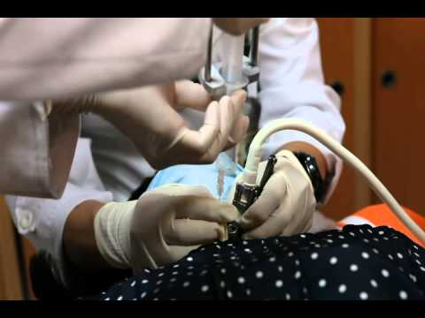 Fine Needle Aspiration Procedure