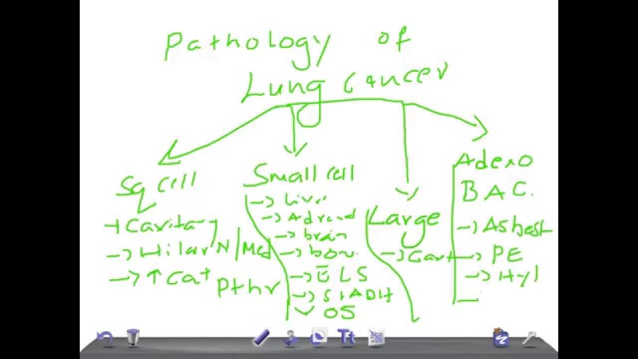 LUNG CANCER PATHOPHYSIOLOGY DOWNLOAD