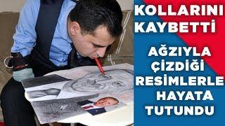 KOLLARINI KAYBETTİ, AMA YILMADI!