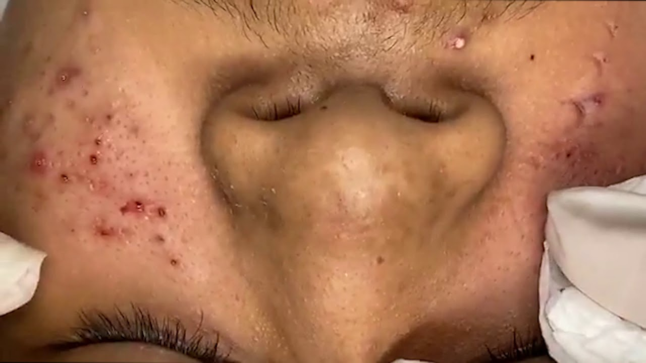 Skincare method that wiped out more than 100 pimples