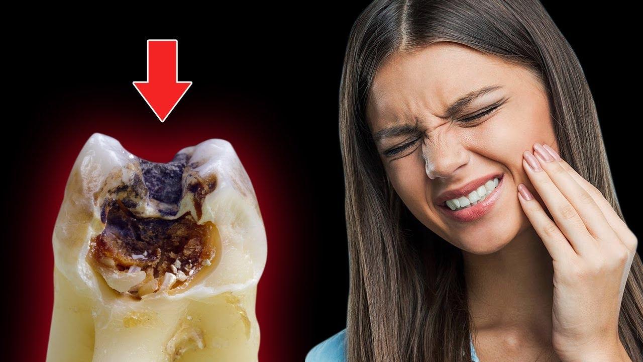 Những nguyên nhân phổ biến gây đau răng