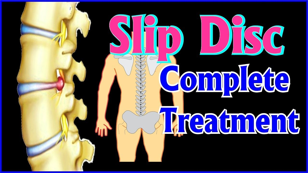 Acupressure Treatment of Slip Disc(Complete Treatmemt ...
