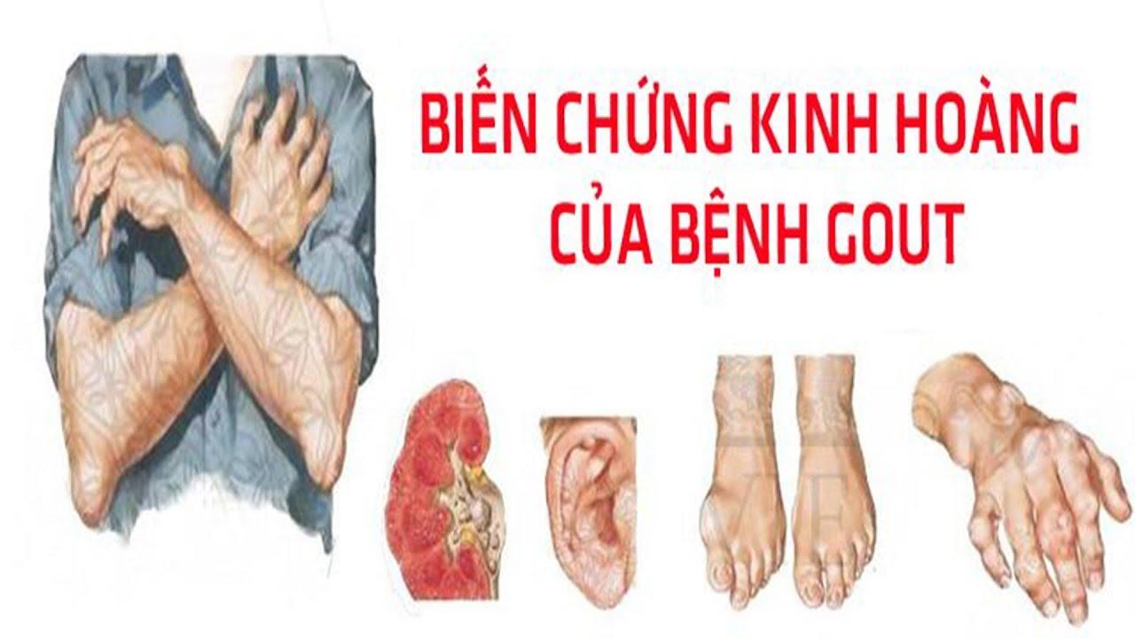 Chữa bệnh gút – Ba biến chứng kinh hoàng của bệnh gut | gout