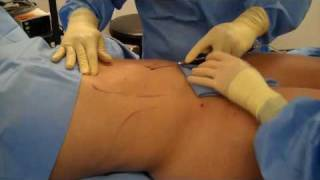 WHICH IS BETTER? Traditional Liposuction SLIMLipo or Non- su