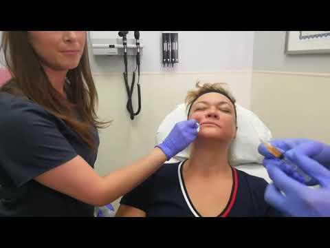 PRP Vampire Facelift in Maxim Medical, Fort Lauderdale, Florida. How it works?