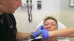 PRP Vampire Facelift in Maxim Medical, Fort Lauderdale, Florida. How it works?