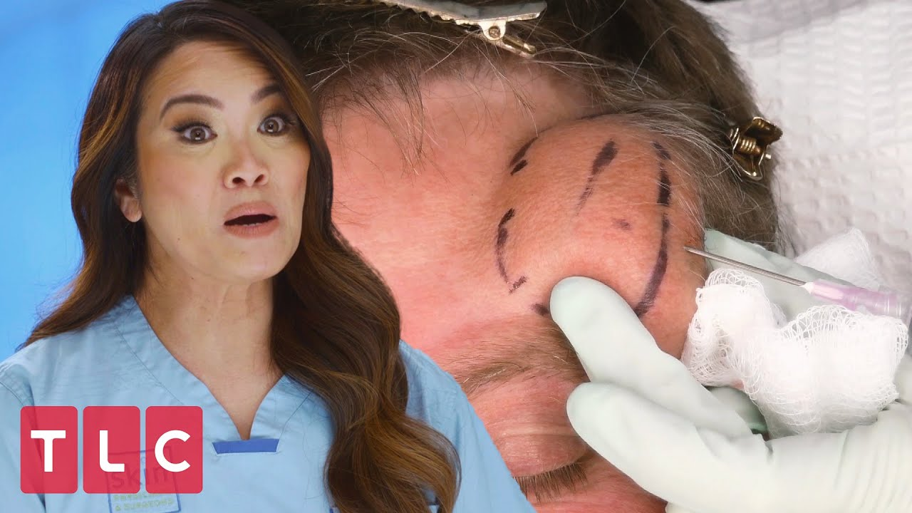 Download Dr. Lee Squeezes a Huge Hairy Cyst! | Dr. Pimple Popper