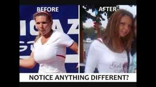 simona halep(Симона Халеп): breasts before and after reducers plastic surgery