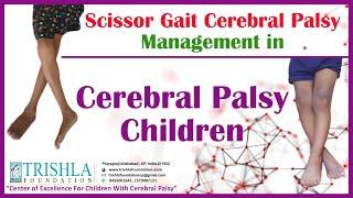 Scissor gait cerebral palsy management in cerebral palsy children