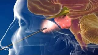 Endoscopic Endonasal Approach — Minimally Invasive Brain Surgery