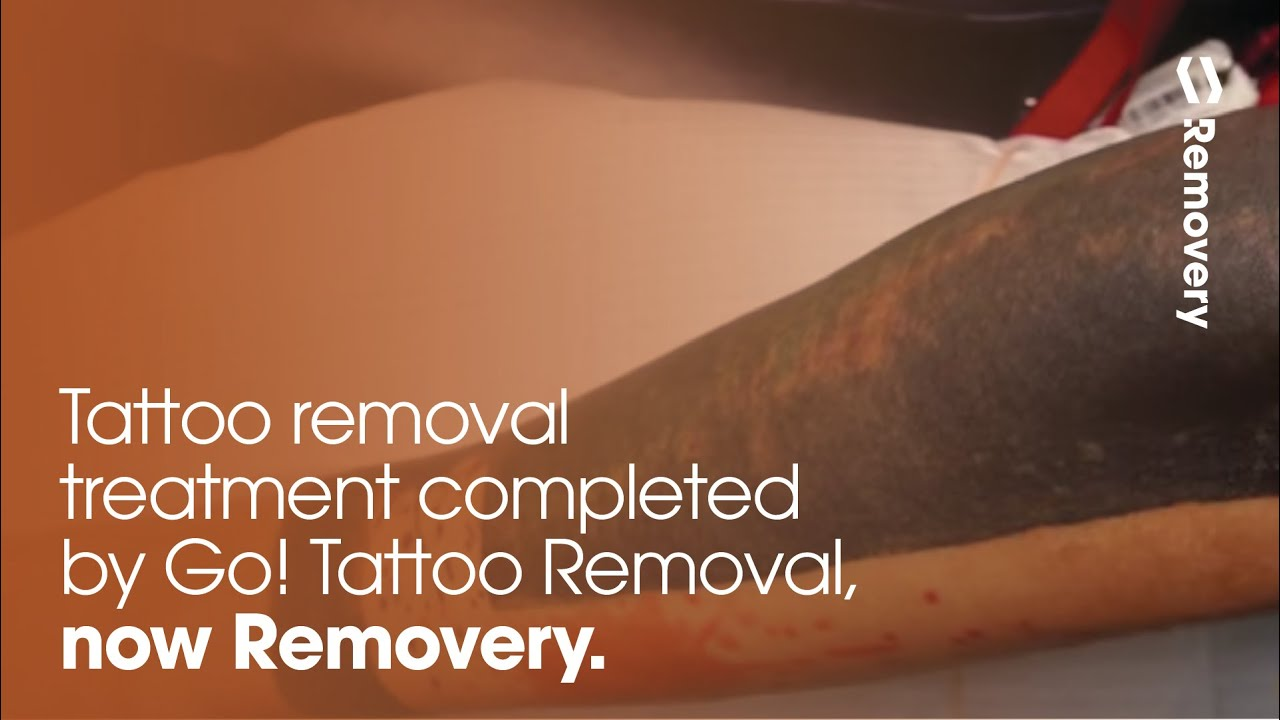 100 tattoo removal using white ink white ink tattoo for Solid black tattoo cover up