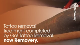 Laser Tattoo Removal On Solid Black Cover-Up Tattoo