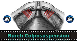 Burch Colposuspension