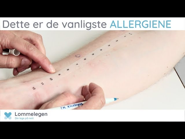 allergitabletter mot kløe