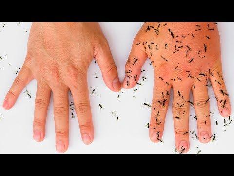 8 натуральных средств, которые избавят вас от комаров