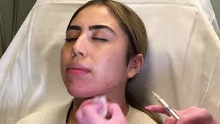 Nose, Chin & Jaw Contouring