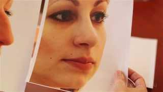 Новый Нос - Новая Судьба. Идеальный Нос Вдохновляет не Меньше, чем Красивые Глаза. Говорит ЭКСПЕРТ(http://artclinic.ru Так ли уж нужен идеальный ровный нос? Что такое открытый доступ и закрытый доступ? Что такое эсте..., 2013-12-22T11:34:28.000Z)