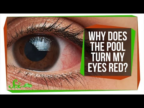 Why Do Your Eyes Get Red in the Pool?