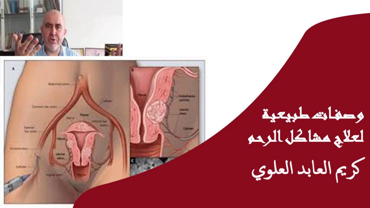 وصفات طبيعية لعلاج مشاكل الرحم الدكتور كريم العابد العلوي Youtube
