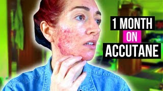 1 MONTH ON ACCUTANE! Acne Update + Scary Aussie Countryside VLOG | Jess Bunty