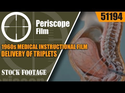 1960s MEDICAL INSTRUCTIONAL FILM DELIVERY OF TRIPLETS w/ LOW SPINAL ANESTHESIA 51194