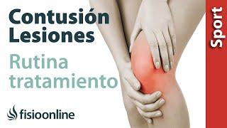 Tratamiento hematoma pierna